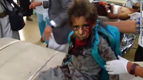 Footage from Houthi-run Al-Masirah TV appears to show a boy, carrying a UNICEF backpack, being treated for injuries.