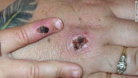 Case of monkeypox confirmed in Blackpool