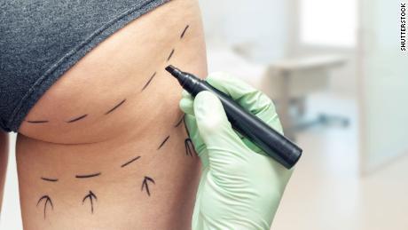 British surgeons warned not to perform Brazilian butt lift surgery
