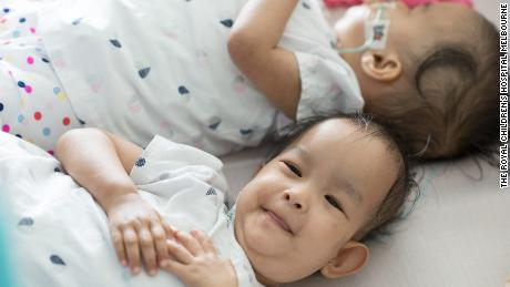 The cost of the surgery is estimated at about $ 180,000 ($ 250,000 Australian) raised by the Children First Foundation.