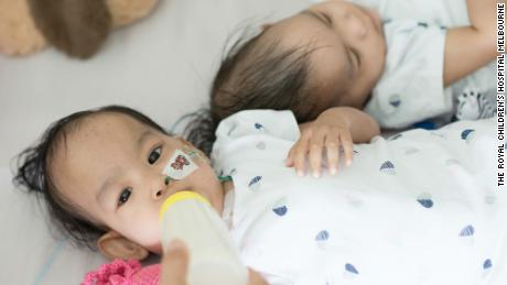 Pediatric surgeon Joe Crameri said the twins were returning to normal life by eating again and starting to move.