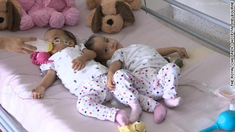 The 15-month-old twins flew nearly 6,000 mlies to Australia for the life-changing operation.