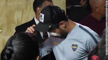 Pablo Perez of Boca Juniors was wearing a bandage over his left eye when he came back to the stadium