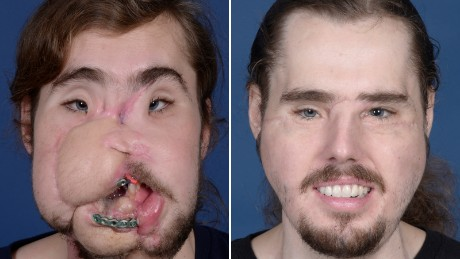 Cameron Underwood before his facial transplant and nearly 11 months after surgery.
