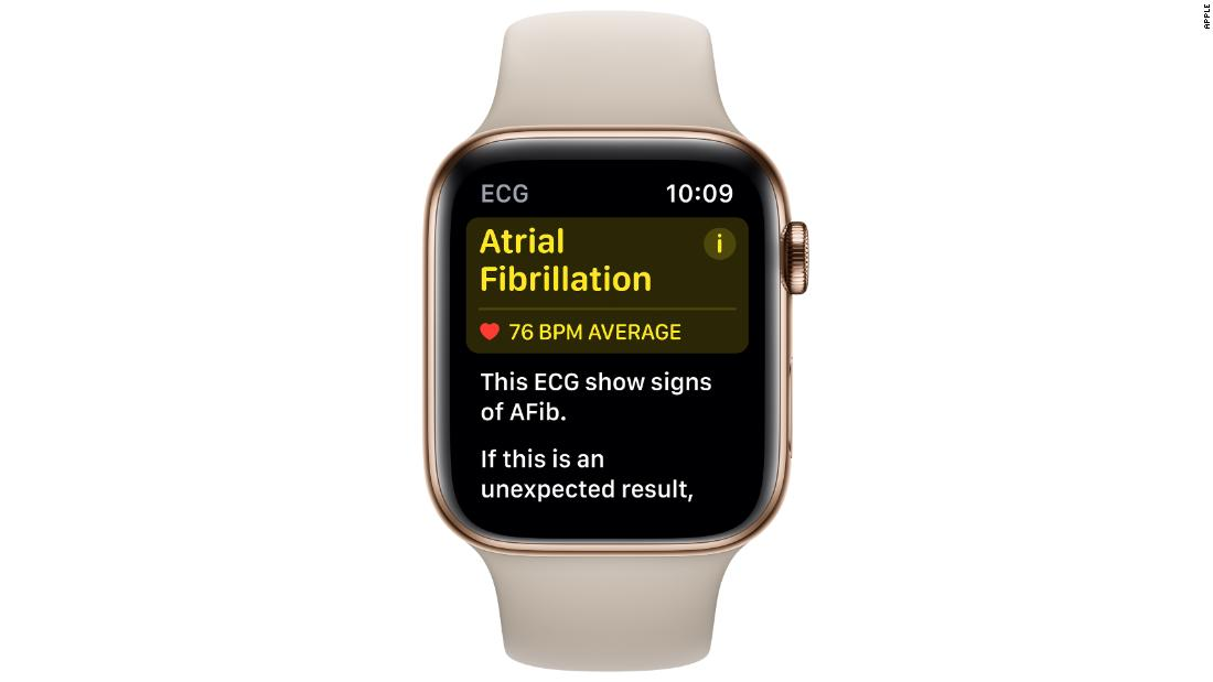 The app can test for atrial fibrillation, a potentially serious heart condition.