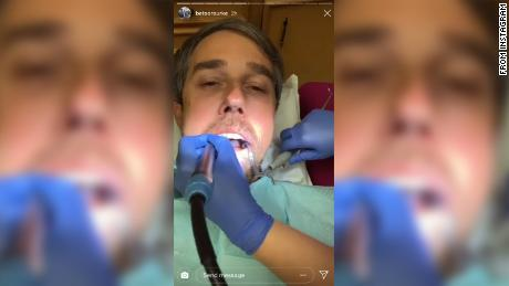 Beto O'Rourke Mocked for Instagramming Trip to Dentist