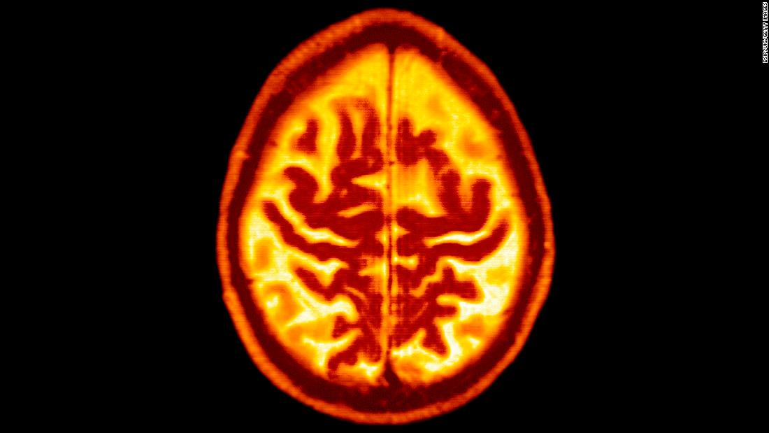 Eat well, exercise more: New global guidelines to reduce risk of dementia - CNN