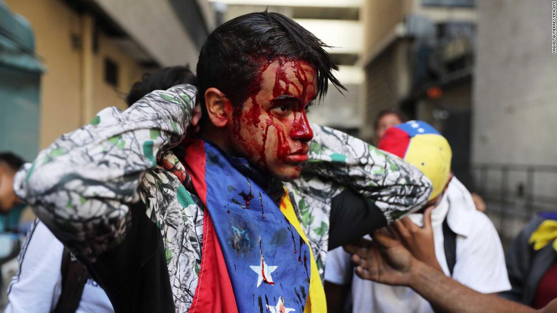 A wounded protester in Caracas on January 23.