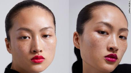 I learned to love my freckles. After this week's social media debate, will China?