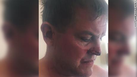 American tourist claims self-defense in death of man in Anguilla