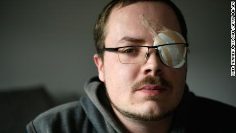 Gwendal Leroy is unemployed and believes his eye injury will be used against him when applying for jobs.