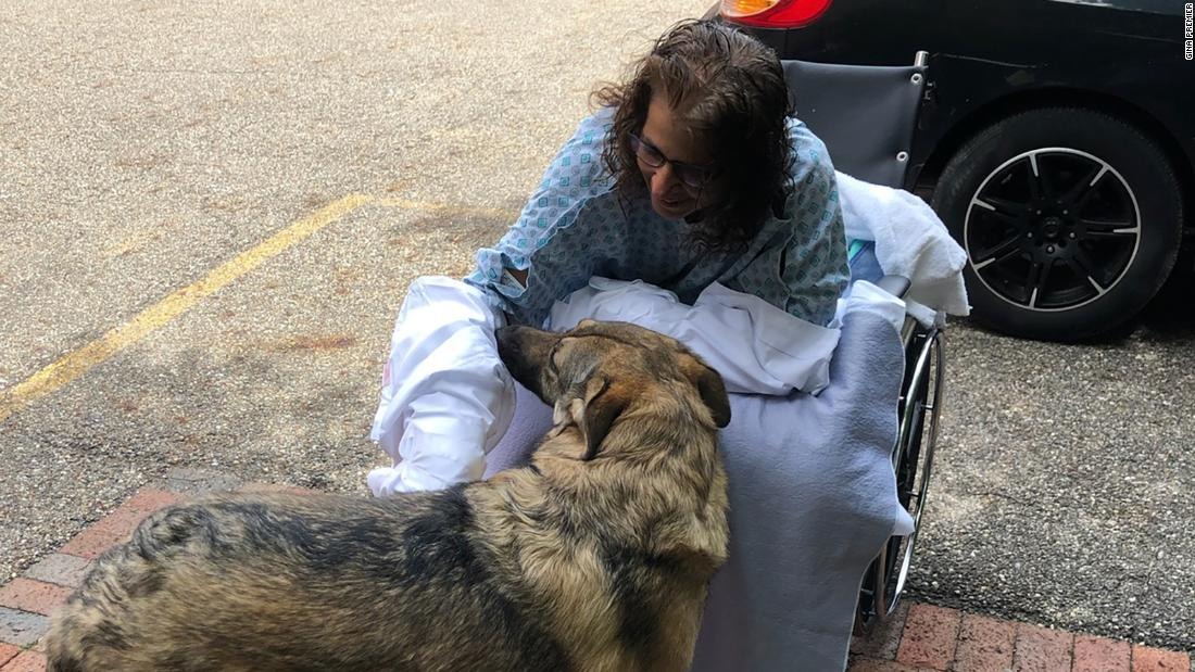A woman lost her hands and legs to an infection from puppy kisses - CNN