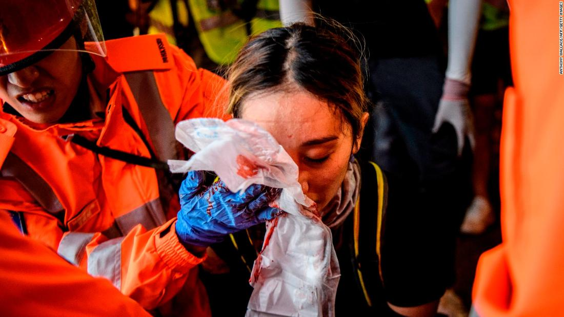 Medics look after a woman who received a facial injury during clashes on Sunday, August 11.