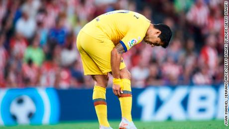 It's unclear how long Suarez will be out with a calf injury.