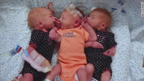 Woman who thought she had kidney stones gives birth to triplets