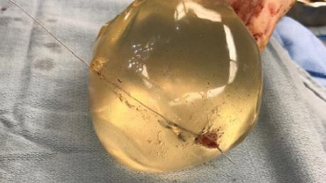 Breast implants saved woman shot in chest