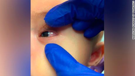 CDC warns doctors about childhood illness linked to Covid-19