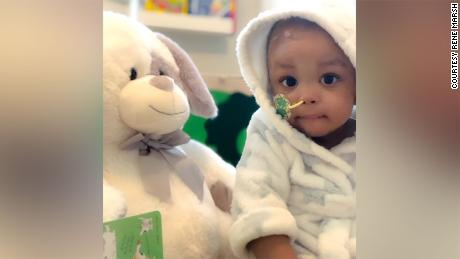 Baby Blake after surgery on h is brain tumor.