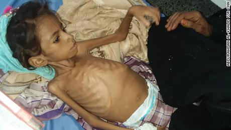 In Yemen aid workers already fear famine for much of the impoverished population.