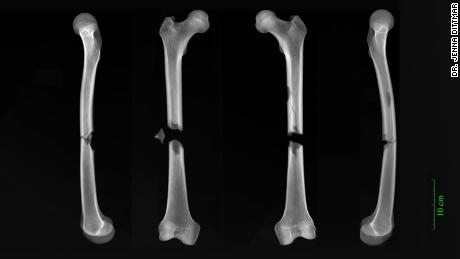 X-rays show butterfly fractures to both femurs of a man buried in the Augustinian friary.