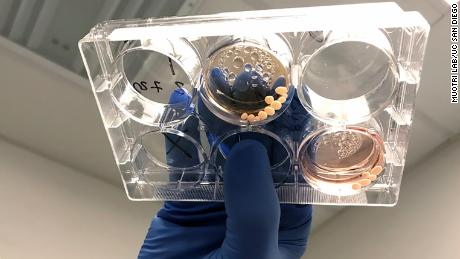 Brain organoids in a petri dish are shown here.