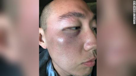 Attack on Asian American man in LA's Koreatown being investigated as a hate crime