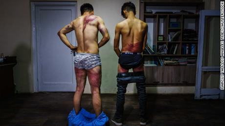 Nemat Naqdi (left) and Taqi Daryabi undress to show wounds sustained after Taliban fighters beat them while in custody on Wednesday.
