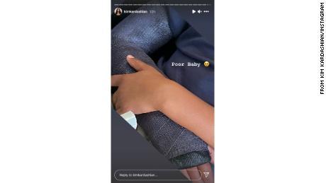 La historia de Instagram de Kardashian mostró el brazo de Saint enyesado.