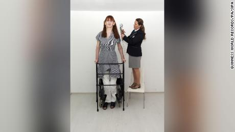 Gelgi normally uses a wheelchair, but she can move using a walker for short period.