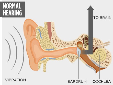 Sound vibrations pass from the outer ear, through the eardrum to the cochlea, which transmits them to the brain as electrical signals.