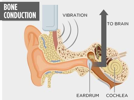 A transducer is used to convert sound into bone vibrations that transmit directly to the cochlea and on to the brain, bypassing the outer ear and eardrum.