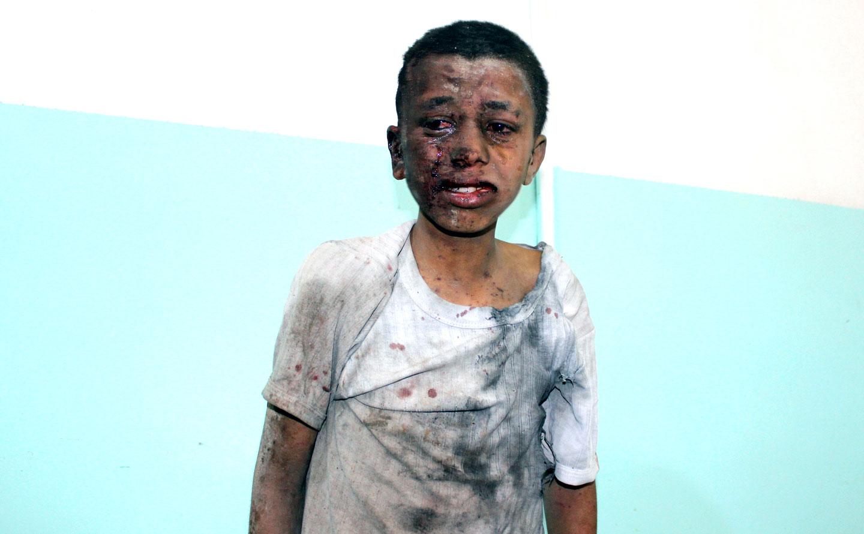 cnn.com - Made in America: Shrapnel in Yemen ties US bombs to civilian deaths