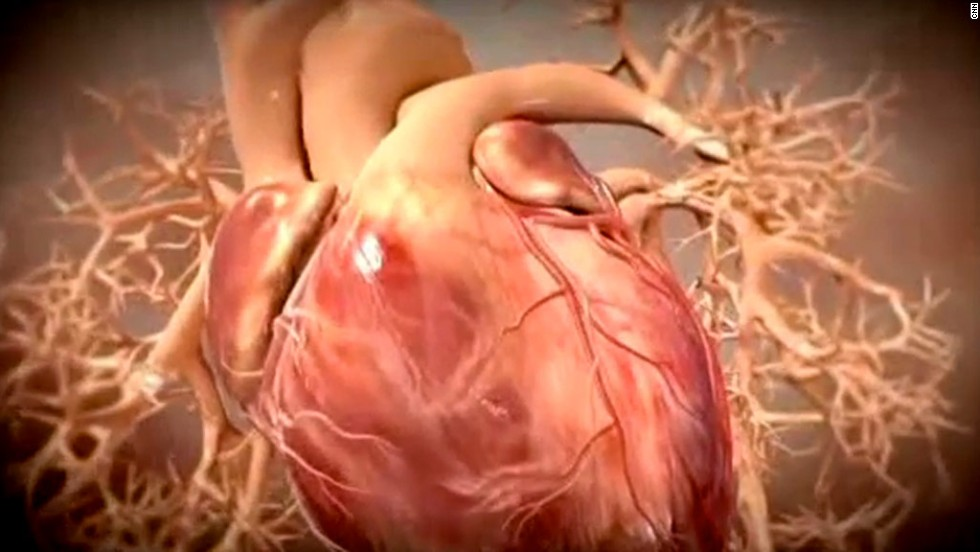 Heart attacks what you should know cnn symptoms of a heart attack may not always resemble those seen on tv an expert ccuart Image collections