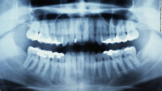 Are baby, wisdom teeth the next wave in stem cell treatment?