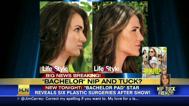 sbt reality star plastic surgery_00012011