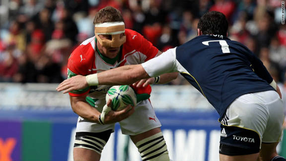 Biarritz and France No. 8 Imanol Harinordoquy played with a protector over his broken nose against Munster in a 2010 Heineken Cup semifinal match.
