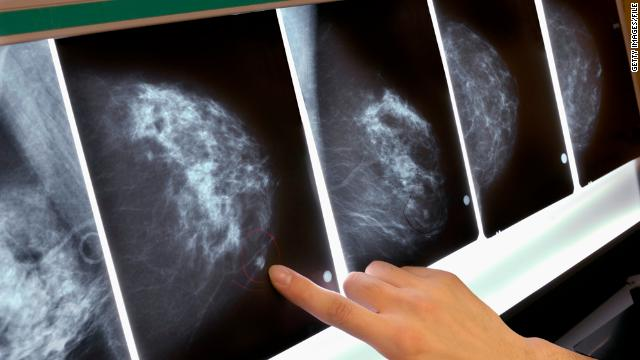 More women die from breast cancer in lower- and middle-income countries, according to a new report.