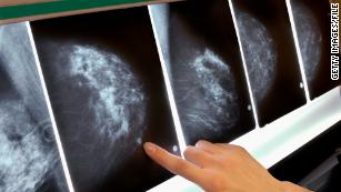 Up to 270 women may have died after England breast cancer screening failures