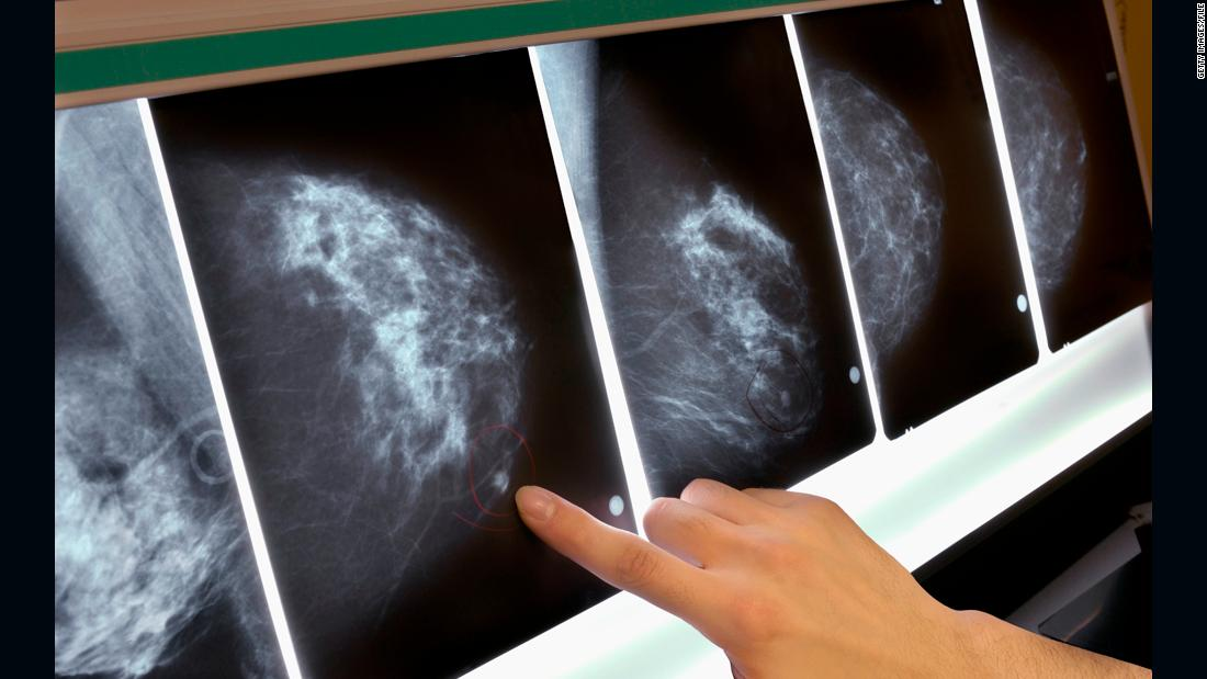 MRI screening for women with extremely dense breast tissue reduces interval cancer