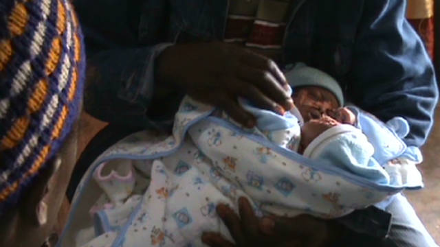 Cameroon conjoined twins need a 'miracle'