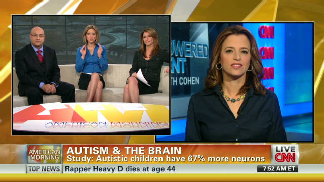 Study: Autistic kids have more neurons