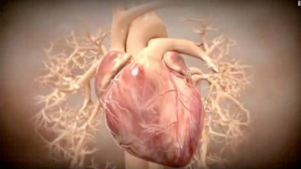 Studies Stem Cells Reverse Heart Damage Cnn