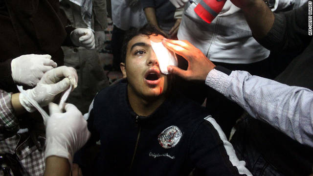 A protester is treated on November 20 in Tahrir Square. At least five demonstrators have been shot in the eye, authorities say.