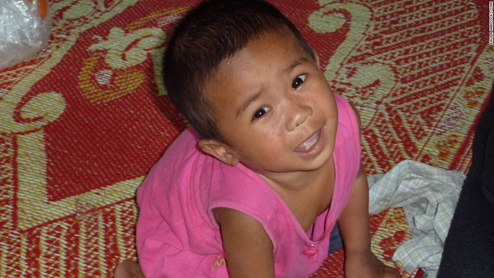Moe Eindra Thet Pai is 19 months old and an HIV orphan. She is being looked after by carers at the HIV clinic in Yangon.