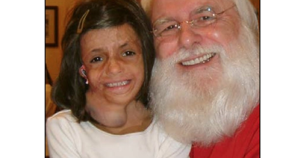 Teeba, injured in Iraq, now has her own special Santa in Santa Lou, who gave the girl his sleigh phone number.