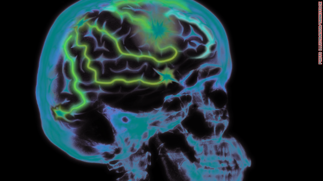 Seizures: When 'electrical brainstorm' hits