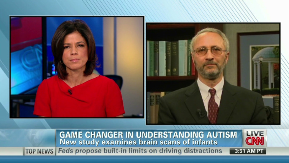 Brain Scans May Forecast Autism In High >> Autism Predicted By Infant Brain Changes Study Says Cnn