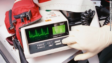 Coffee shops, ATMs may be ideal locations for defibrillators, study says