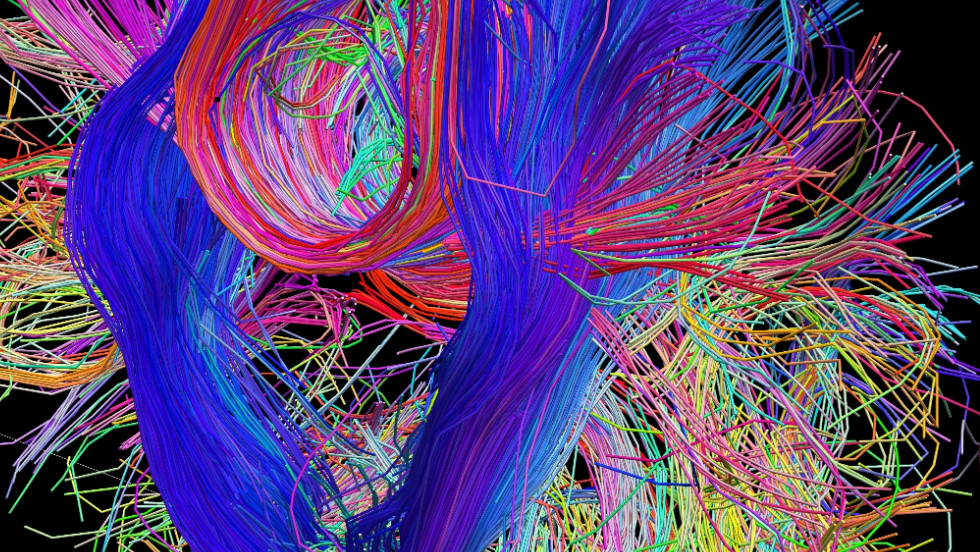 "The Human Connectome Project is giving neuroscientists a new perspective on the connections in the brain and how they communicate with each other.Copyright Laboratory of Neuro Imaging, UCLA and Randy Buckner, PhD. Martinos Center for Biomedical Imaging, MGH. <a href=""http://www.humanconnectomeproject.org/"" target=""_blank"">www.humanconnectomeproject.org</a>"