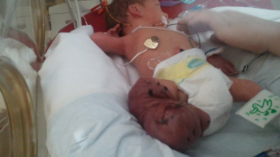 The swelling in Brantley's leg increased after birth.